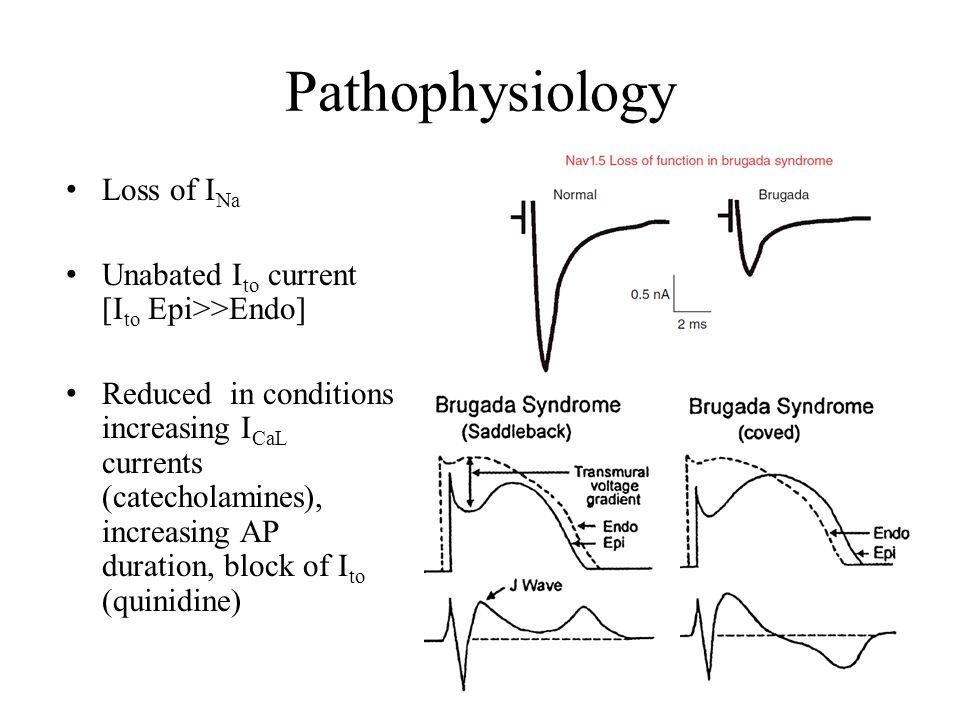 Pathophysiology Loss of INa Unabated Ito current [Ito Epi>>Endo]